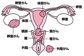 癌 マーカー 卵巣 腫瘍