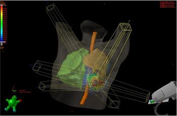 放射線治療について